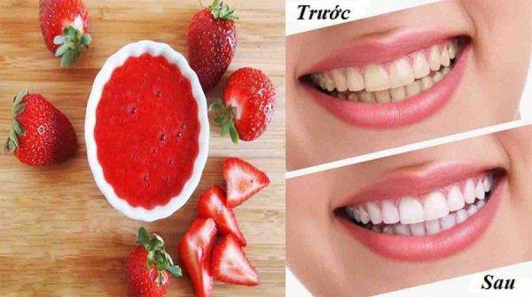 Chấm dứt tình trạng răng vàng ố ngay lập tức với bí kíp đơn giản tại nhà, rạng ngời răng trắng đón tết